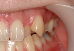 八重歯 叢生 原因