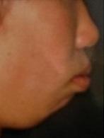 アデノイド様顔貌 矯正 口呼吸