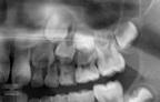 八重歯 パノラマ レントゲン